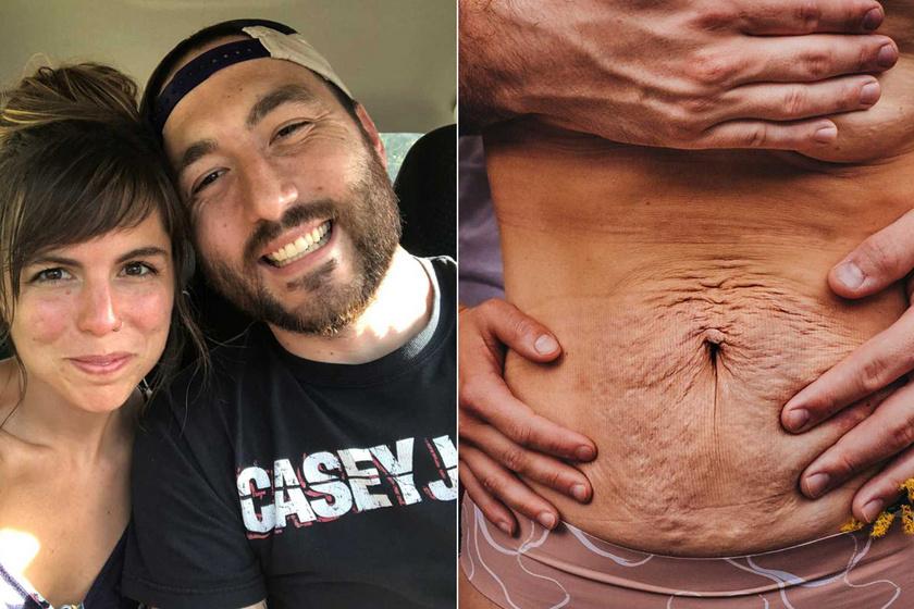 Egy apa őszinte vallomása felesége szülés utáni testéről - Elárulta, zavarják-e a változások