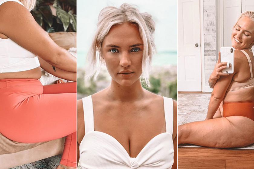Testének olyan részleteiről posztol a fiatal nő, amiről más nem merne - Őszinte fotóival fontos célja van
