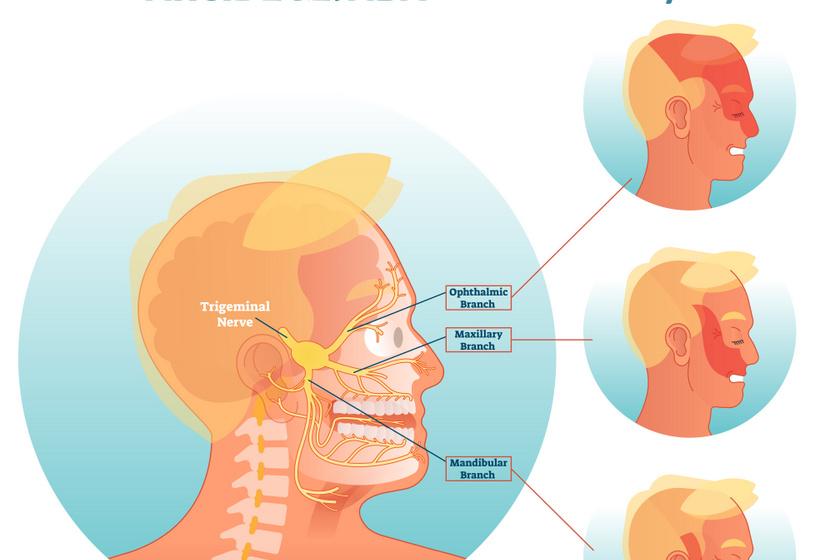 arcidegzsábafájdalom