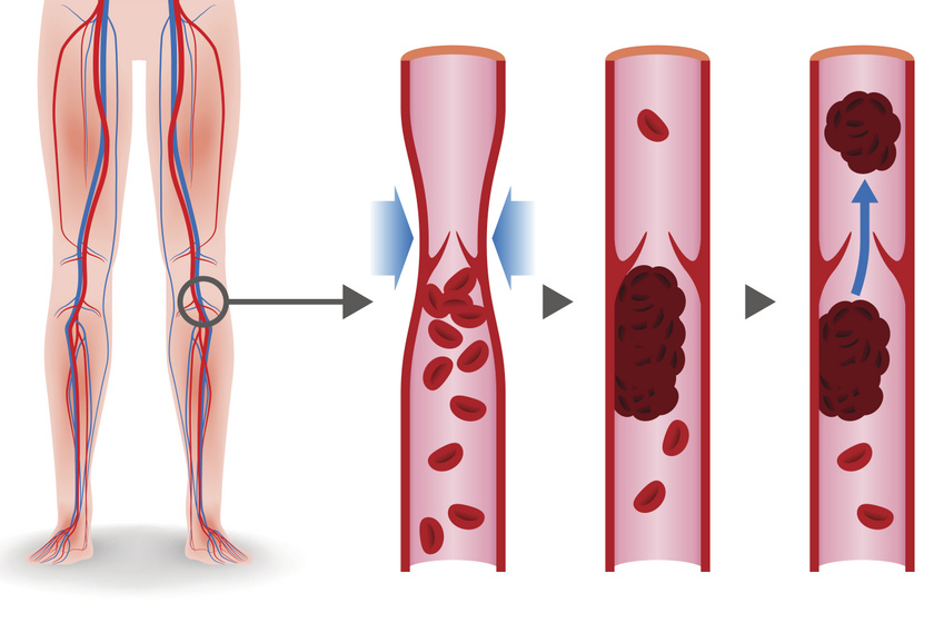 Ez történik mélyvénás trombózis során a vérerekben.