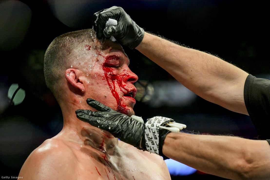 Nate Diaz sérülését látják el a Jorge Masvidal elleni szombati mérkőzésen