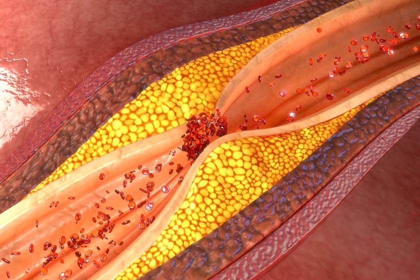 Így néz ki az artériás trombózis.