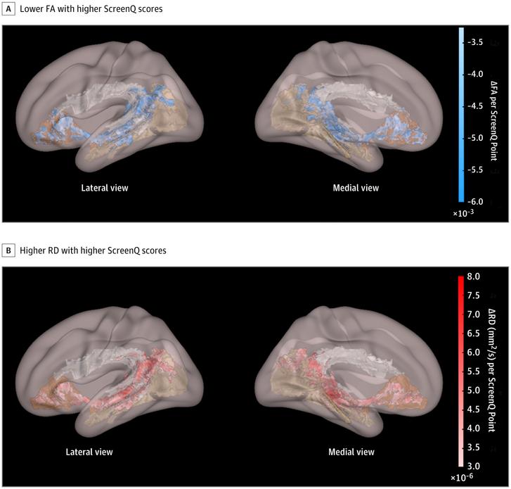 Ebben a nézetben jól átható a nyelvi- és olvasási készségekkel összefüggő három fehérállomány pálya. A fehér szín az agy azon területeit köti össze, amik hozzájárulnak a receptív és expresszív nyelvhasználathoz. A barna a tárgyak gyors megnevezését segíti, a bézs pedig a vizuális képalkotást. A kék szín azt mutatja, hogy mennyivel kevésbé fejlett a fehérállomány azoknál a gyerekeknél, akik sokat néznek képernyőt.