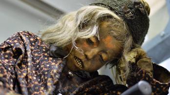 Baromorvoslás, kénégénybódítás, mumifikált kisfiú – 250 éves a Semmelweis Egyetem