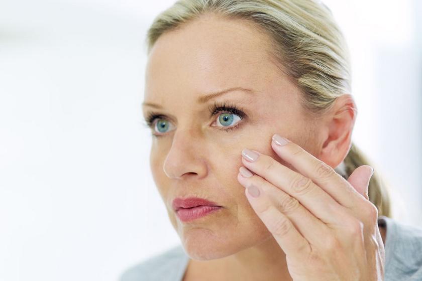 Kiszáradt, hámló bőr a szemkörnyéken: 7 betegség, aminek a tünete lehet