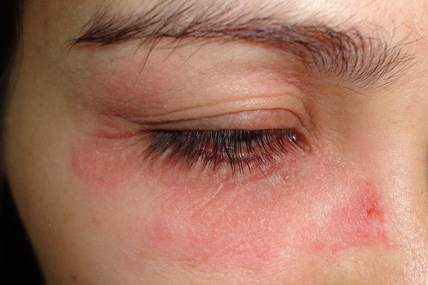 a szem körül vörös foltok viszketnek
