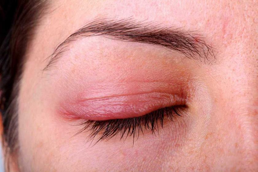 a felső szemhéjon vörös folt és hámlás található lábízületek kezelése pikkelysömörhöz