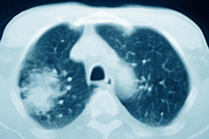 Így néz ki röntgenfelvételen a tüdőrák.