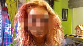 Ilyen brutális támadást nő ellen még nem követtek el