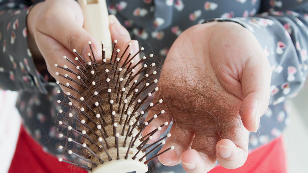 Napi hány hajszál elveszítése számít kórosnak? Betegséget is jelezhet