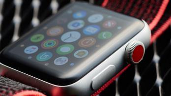 Felhasználói adatokkal járulna hozzá a tudomány fejlődéséhez az Apple