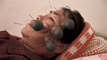 Európai orvosok: A hagyományos kínai orvoslás mögött nincs bizonyíték