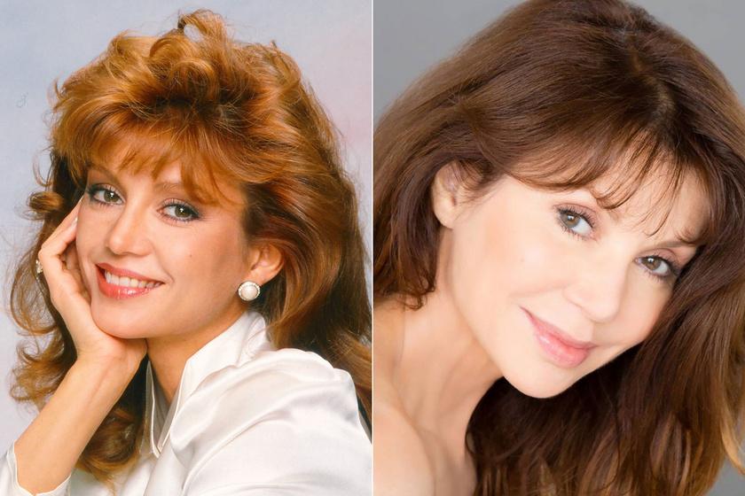 A hetvenéves színésznő több tíz évet letagadhatna a korából, ez második férjének, dr. Harry Glassman plasztikai sebésznek is köszönhető, de elmondása szerint saját márkás kozmetikai termékei is csodákat tesznek bőrével.