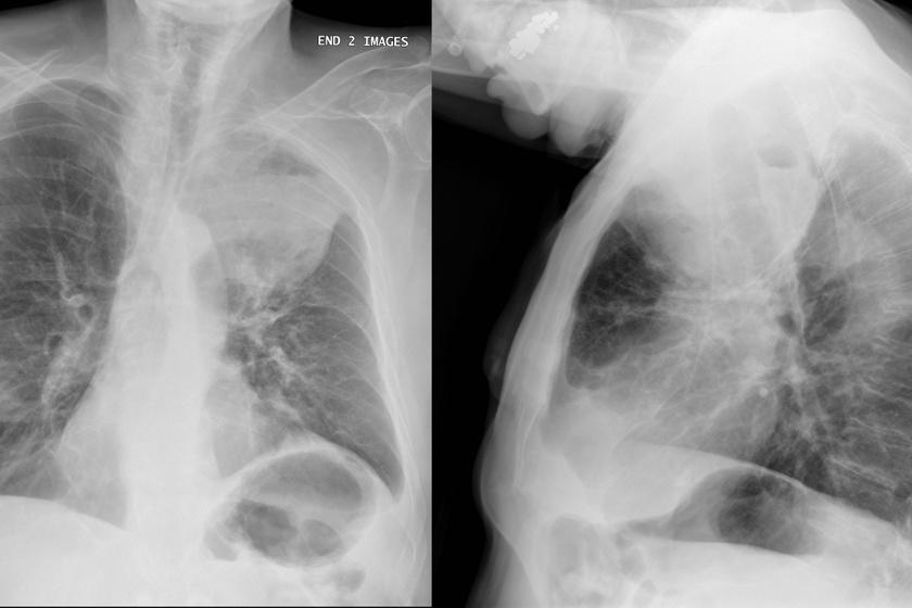 Röntgenkép tüdőrákos betegről.