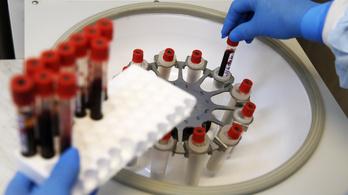 99 százalékos pontossággal mutatható ki 13 ráktípus a vérből egy új módszerrel
