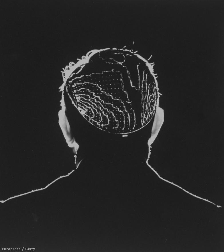 1971. A képen Derek Fender, az alkalmazott biológia professzora látható, aki az agykéreg idegimpulzusait kutatta számítógéppel.