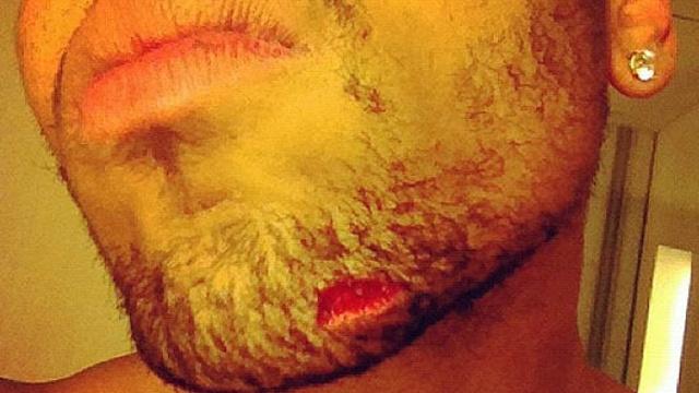 Chris Brown a Drakel és sleppjével lezajlott incidens után posztolta ezt a képet Twitteren