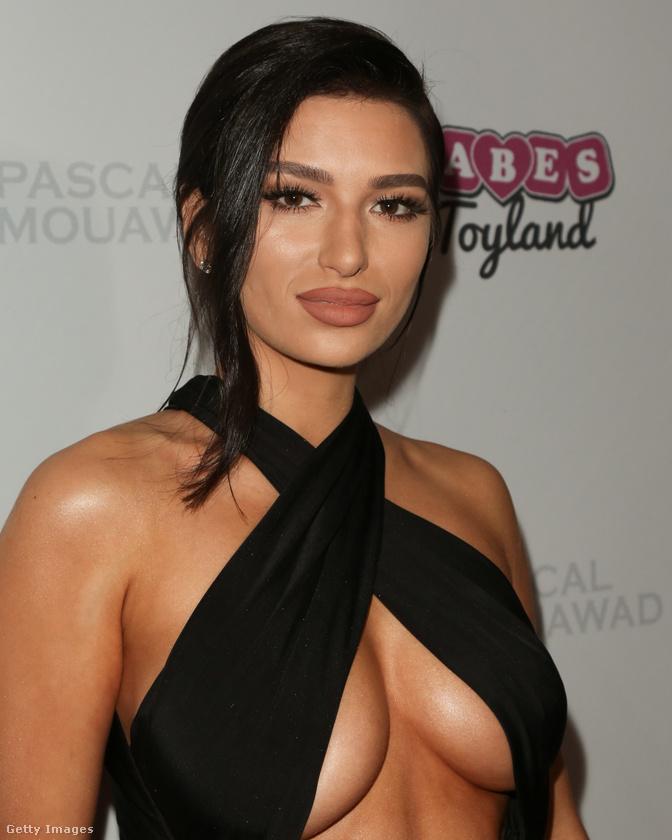 A mellaljával jótékonykodó Rebecca Karalash szintén modell.