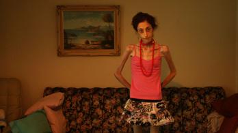 Anorexia: csak a jéghegy csúcsa, hogy nem eszik