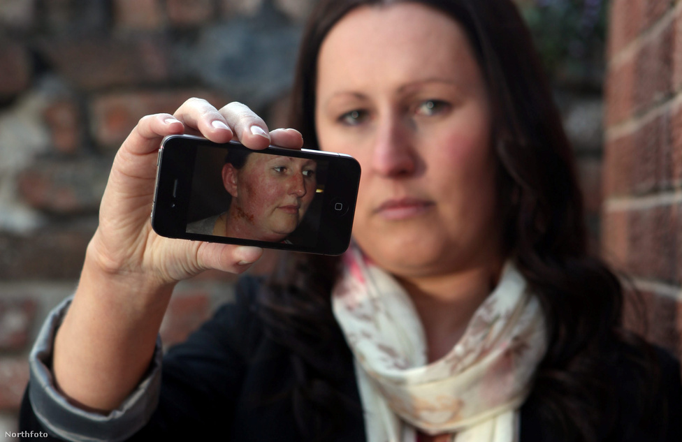 És van aki allergiás erre az egészre. A 30 éves liverpooli Jenny Taylor fél arcát ronda kiütések lepték el, miután használni kezdte vadiúj telefonját. A csúny allaergiás reakciót valószínűleg a hivatalos Apple kiegészítő, a szilikontartalmú védőtok váltotta ki.