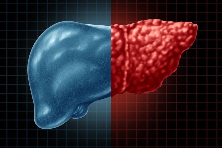 Hogyan alakul ki a zsírmáj, és hogyan lehet kezelni? Az étrend jelentheti a megoldást