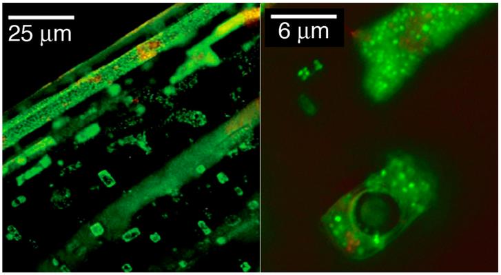 Zöldre festett Halobacterium sejtek. A Halobacteriumok nevük ellenére archeák
