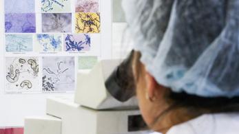 Elhozza-e a rengeteg adat a rákkutatás forradalmát?
