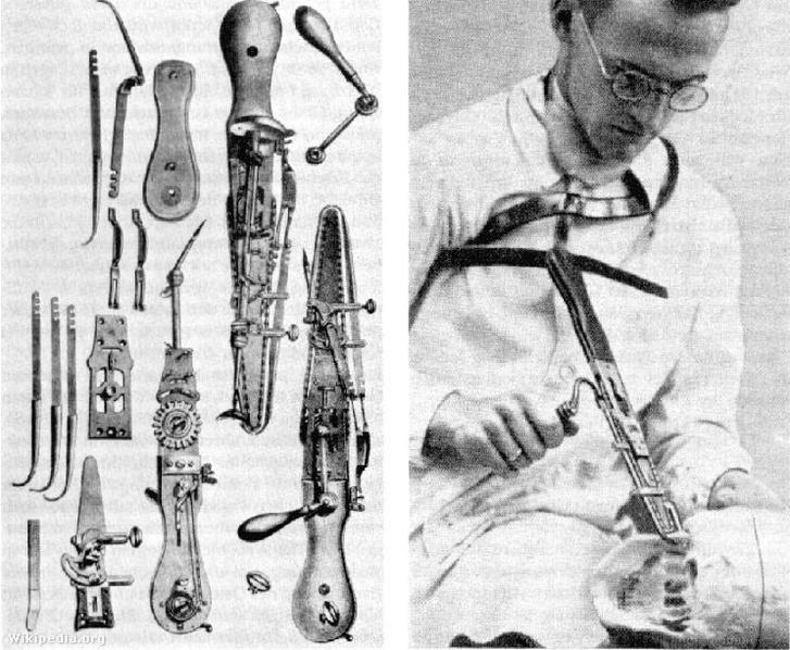 Sebészeti eszközök, közöttük láncfűrész, illetve a láncfűrész használatát bemutató sebész