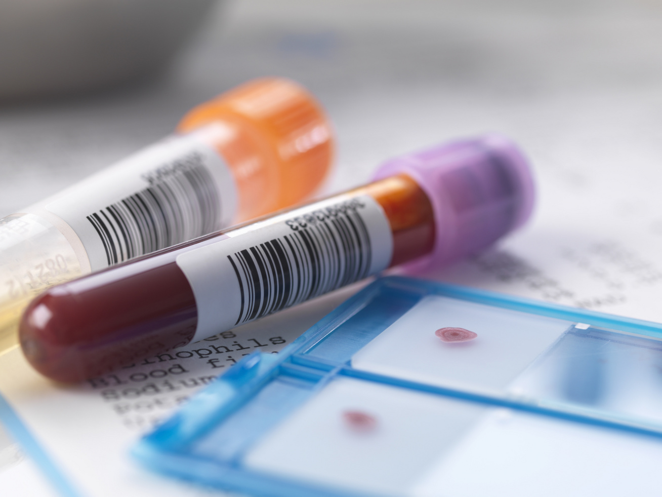 terheléses vércukorvizsgálat nyitó