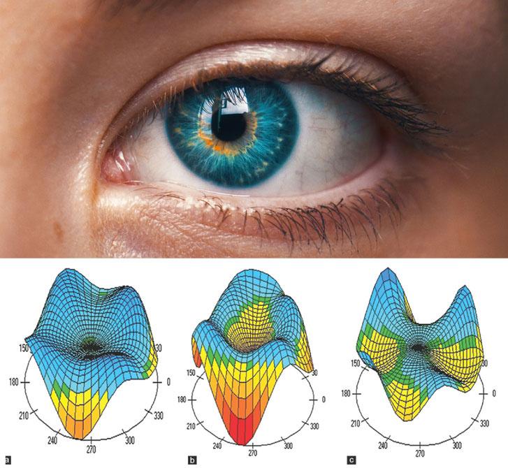 Minden szem egyedi. Minél pontosabban feltérképezzük, annál eredményesebben kezelhetjük a szem fénytörési hibáit.