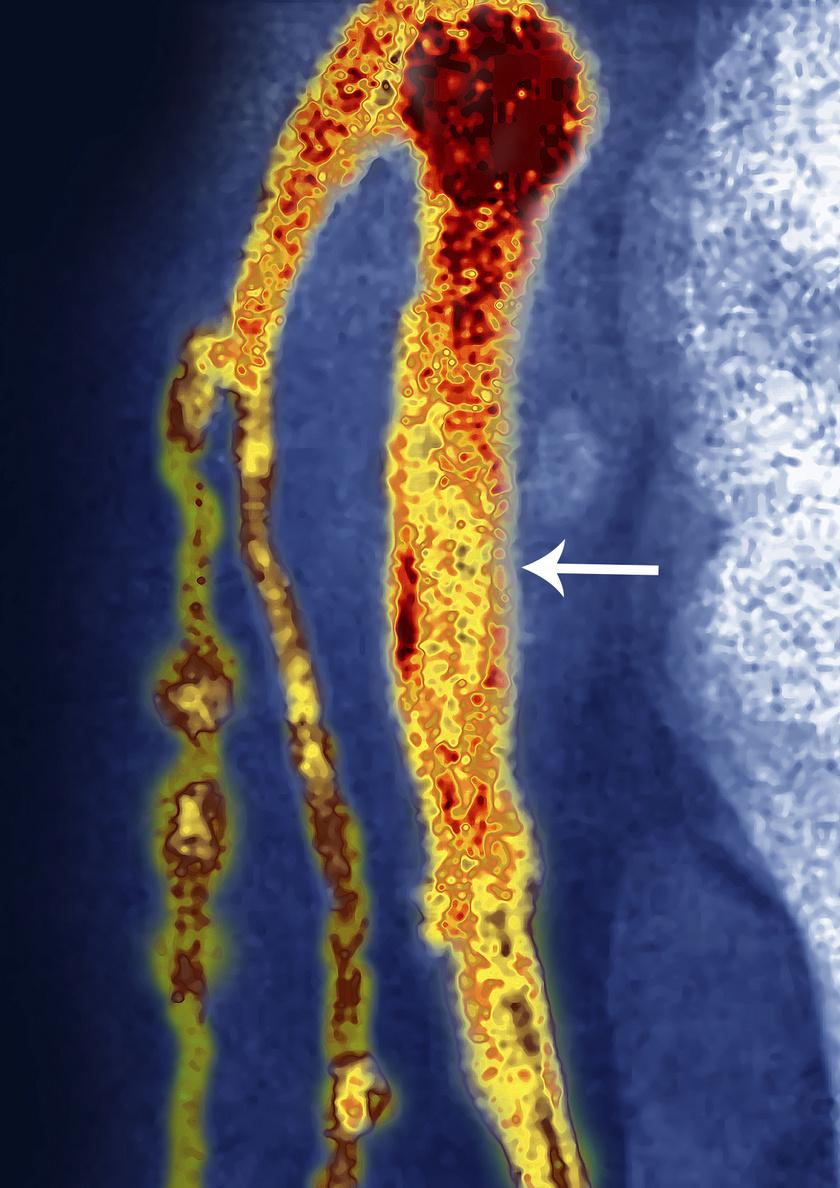Így néznek ki a plakkok a vérerekben.