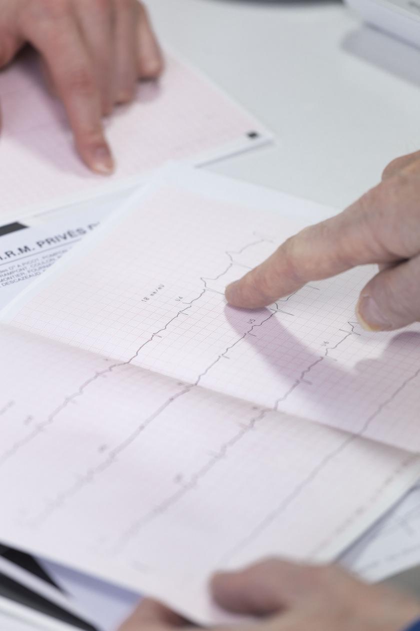 iszkémiás szívbetegség ekg 3