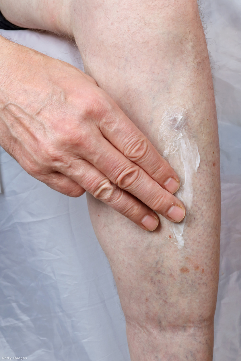 irritáció a lábon viszkető vörös folt