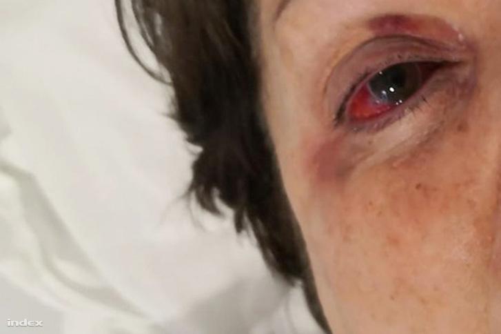 A fotó a második műtét (és sokadik injekció) után készült.