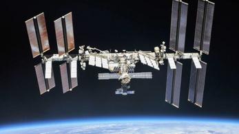 Trombózisa lett egy űrhajósnak a Nemzetközi Űrállomáson