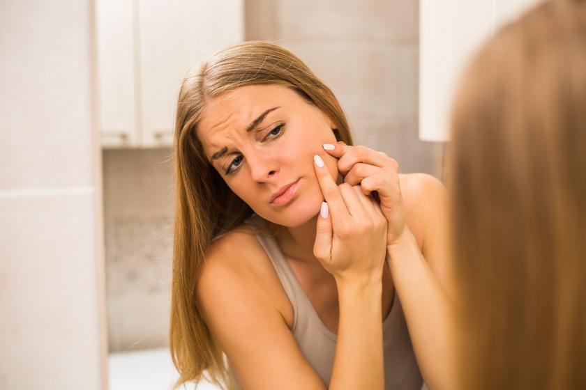 Mit jelent, ha a homlokodon, és mit, ha az álladon nő pattanás? Egészen más egészségügyi problémára utalnak