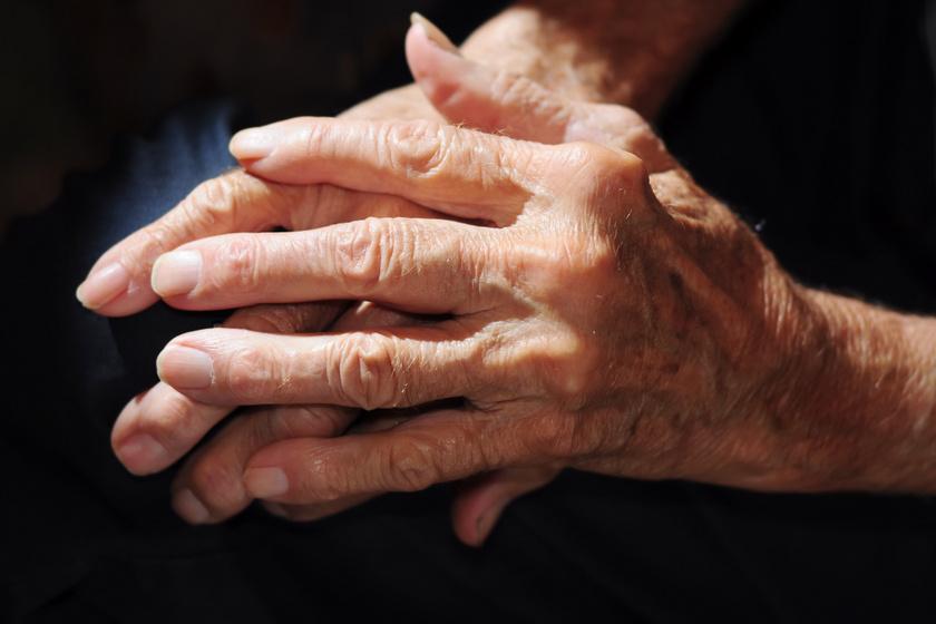 Ízületi gyulladás a kézen - a ropogtatásnak nincs hozzá köze