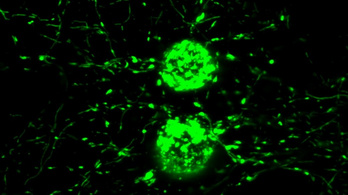 Magyar kutatók azonosítottak új molekulákat neurológiai betegségek gyógyításához