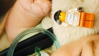 Nem kapott levegőt a négy hónapos csecsemő, legófigura volt a nyelőcsövében