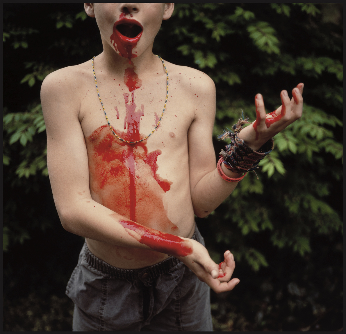 Bloody Nose 1991 silver dye bleach print Private collection