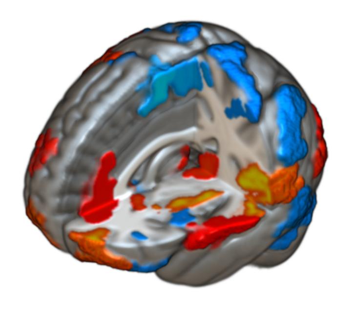 A fájdalomérzékelésben szerepet játszó agyterületek színezve