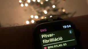Zsolt karácsonyra egy Apple Watch 5-ot kapott, ez mentette meg az életét