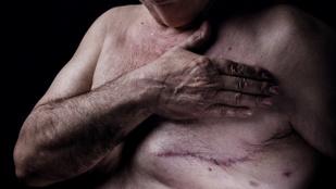 A férfiakra veszélyesebb a mellrák