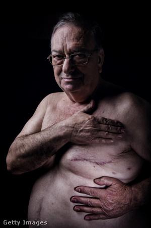 Mellrákos férfi műtét után