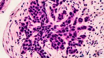 Óriási áttörés készül a rákkutatásban
