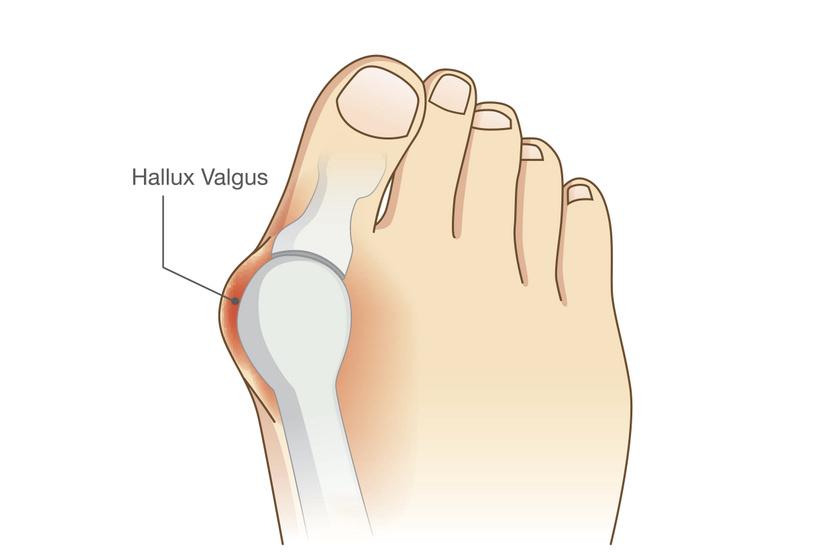 lábfájdalom bütyök