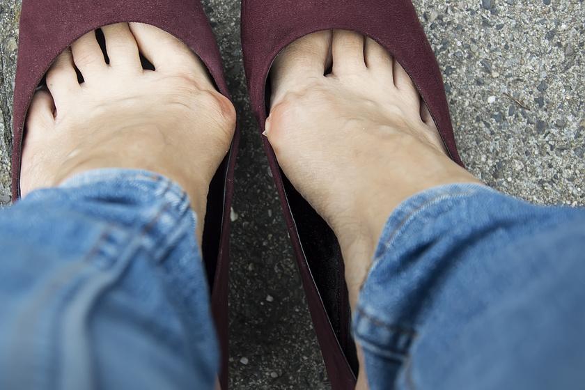 lábfájdalom cipő