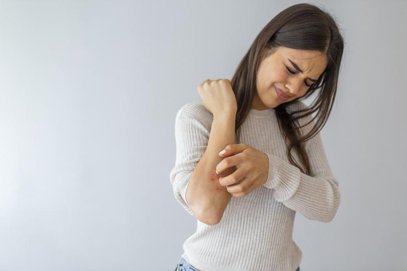 allergiás tnet eanafilaxiás sokk