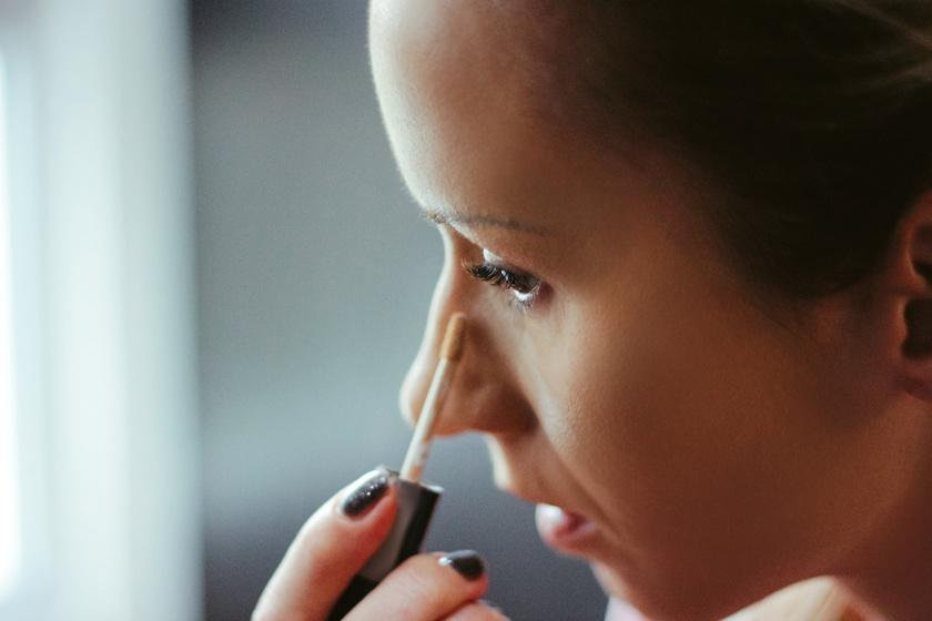 Így szabadulj meg a szem alatti karikáktól a bőrgyógyász szerint: nem csak az alváshiány okozhatja