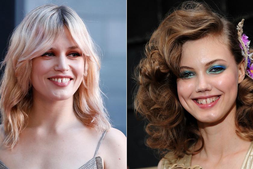 Szabálytalan a mosolyuk, de eszük ágában sincs változtatni rajta: 8 modell, aki kusza fogakkal robbant be a szakmába